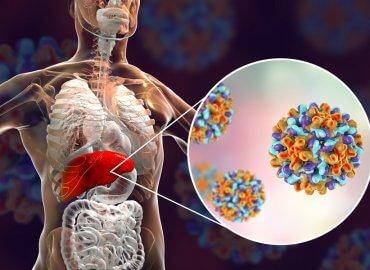 Her 30 Saniyede 1 Kişi Hepatite Bağlı Hastalıklara Yeniliyor