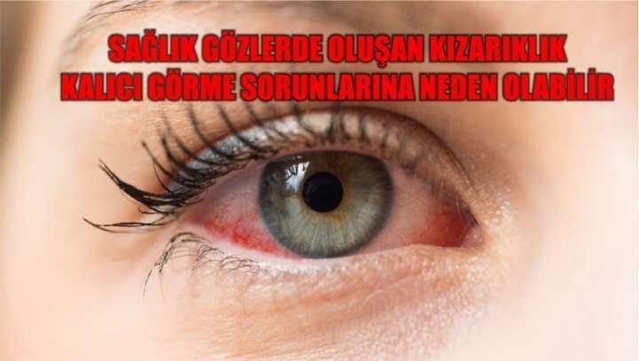 Sağlık Gözlerde oluşan kızarıklık kalıcı görme sorunlarına neden olabilir