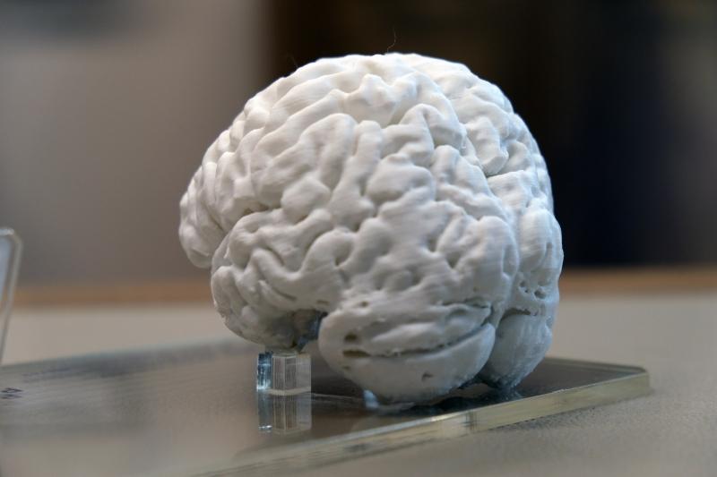 """""""Türkiye'de ilk kez yaşayan bir insan beyninin 3D kopyası yapıldı"""""""