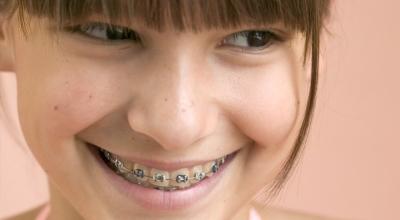 Çocuklarda ortodonti tedavisi için geç kalmayın!